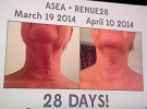 ASEA Health Breakthrough